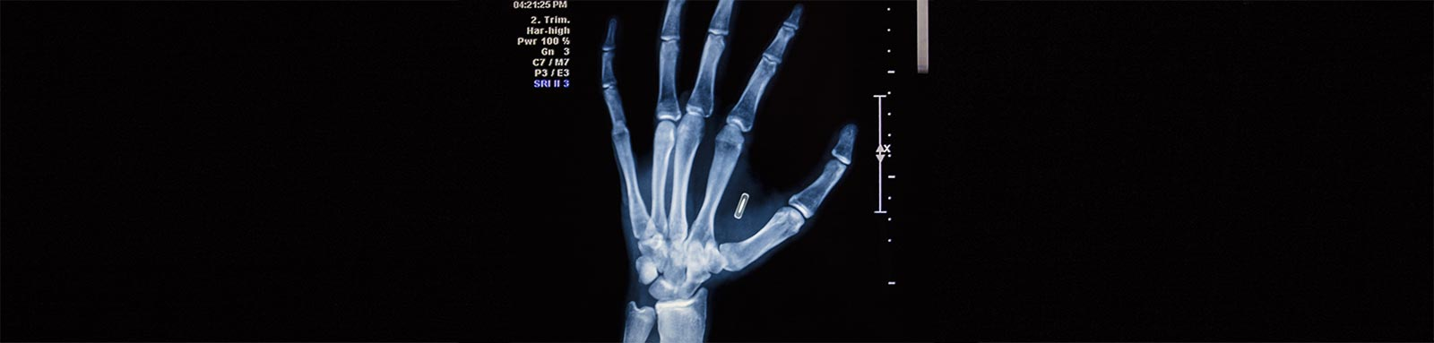 Xray of hand with microchip
